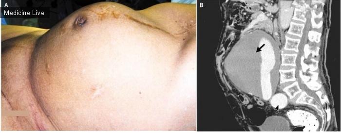 Интересный случай: Аневризма брюшной аорты