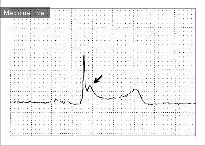 Интересный случай: Изменения на ЭКГ в условиях экстремальной гипотермии