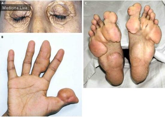 Интересный случай: Ксантелазмы при семейной гиперхолистеринемии