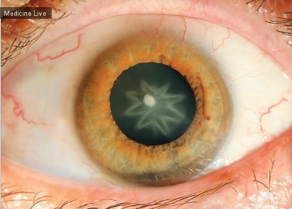 Интересный случай: Звездчатая катаракта
