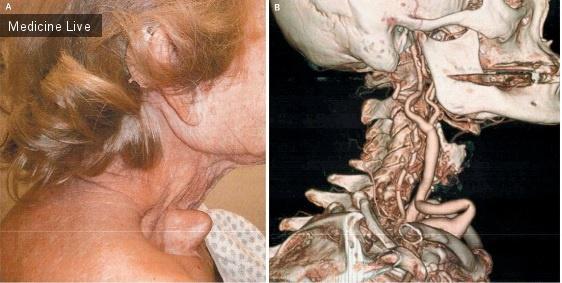 Интересный случай: Извитость сонных артерий