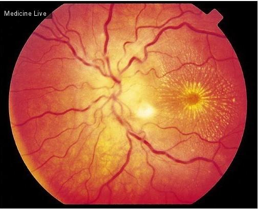 Интересный случай: Неврит зрительного нерва инфекционной этиологии