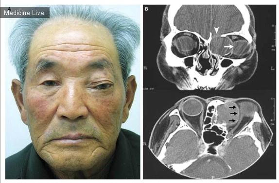 Интересный случай: Ухудшение зрения вследствие кисты решетчатой пазухи