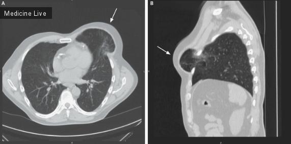 Интересный случай: Хирургия: Грыжа лёгких после малоинвазивной кардиохирургии