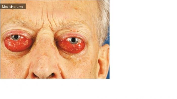 Интересный случай: Бинокулярный экзофтальм при орбитальной лимфоме