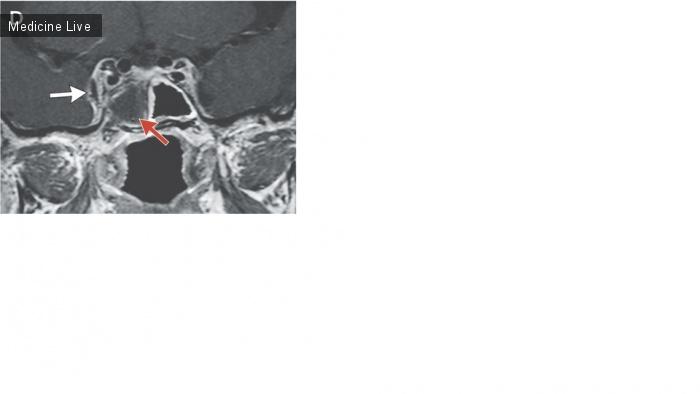 Интересный случай: Септический церебральный венозный тромбоз