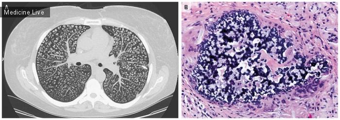 Интересный случай: Лёгочный гранулёматоз инородных тел