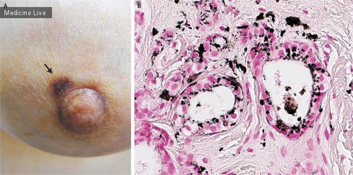 Интересный случай: Пигментированная макула- как кожное проявление инвазивного рака молочной железы.