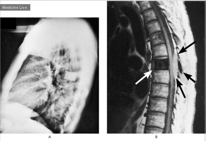 Интересный случай: Позвонок из слоновой кости