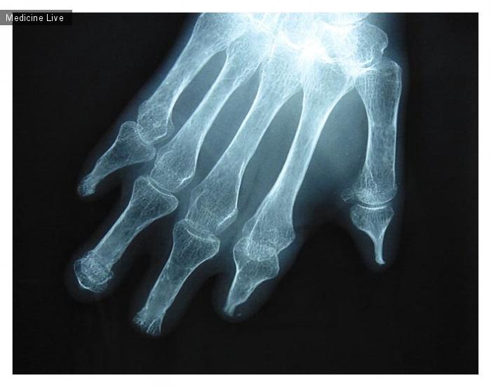 Интересный случай: Системный склероз и дистальный остеолизис