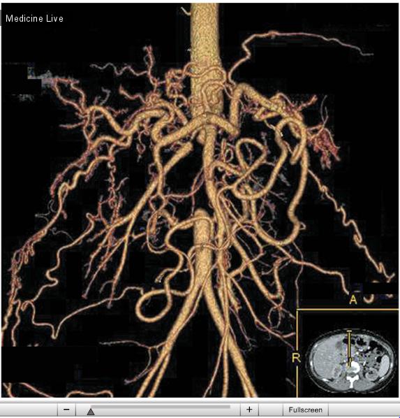 Интересный случай: Синдром (болезнь) Такаясу  (Неспецифический аортоартериит).