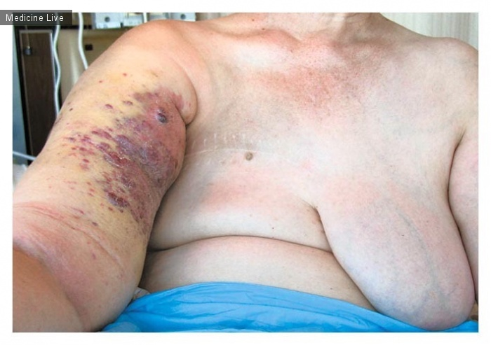Интересный случай: Синдром Стюарта-Тривса (постмастэктомическая лимфангиосаркома, злокачественная лимфостатическая эндотелиома)