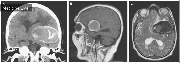 Интересный случай:  Гигантское тромбированние внутричерепных аневризм