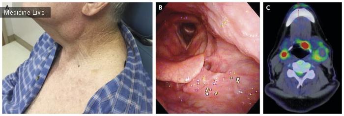 Интересный случай: Папилломавирус человека (HPV) ассоциированный с орофарингеальной плоскоклеточной карциномой