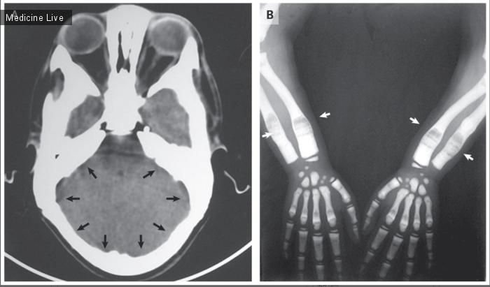 Интересный случай: Остеопетроз (врождённый семейный остеосклероз, мраморная болезнь, болезнь Альберс-Шенберга)