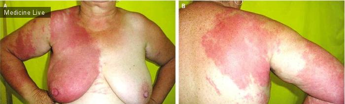 Интересный случай: Целлюлит после лечения рака груди