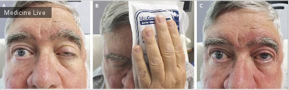Интересный случай: Диагностика миастении при помощи пакета со льдом.
