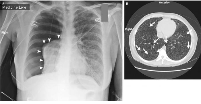 Интересный случай: Спонтанный пневмоторакс при туберкулезном склерозе