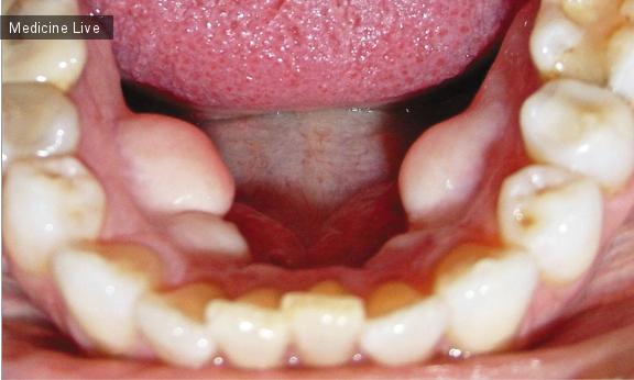 Интересный случай: Экзостозы нижней челюсти