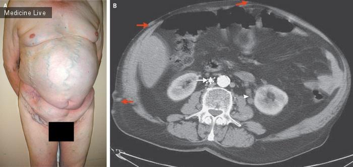 Интересный случай: Тромбоз нижней полой вены и дилятация вен ствола