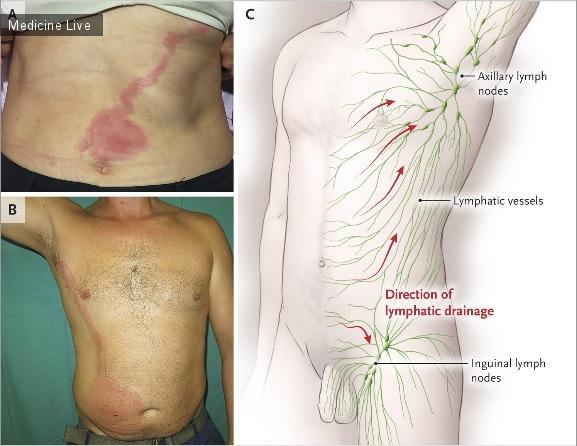 Интересный случай: Лимфангит на брюшной стенке