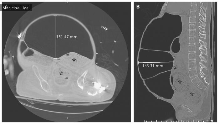 Интересный случай: Нейрогенный мегаколон (расширение толстой кишки) при травме позвоночника