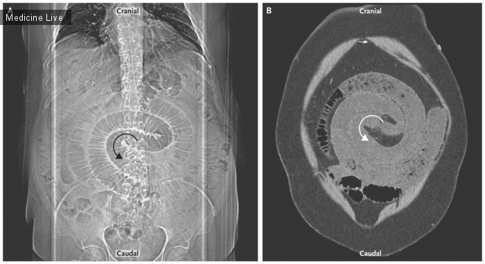 Интересный случай: Заворот кишок после шунтирования желудка с гастроеюноанастомозом по Ру