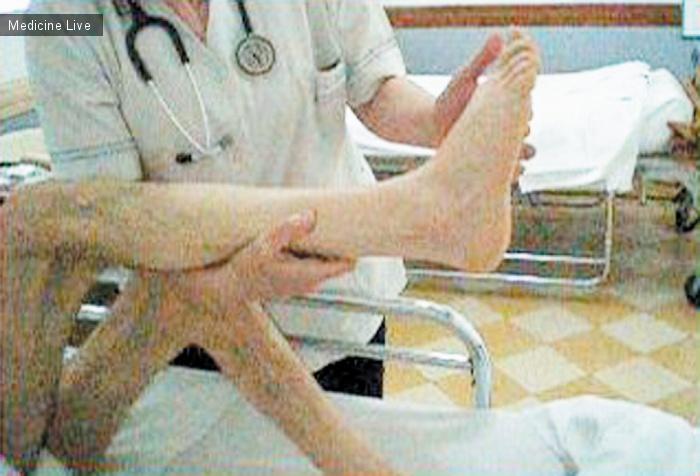 Интересный случай: Клонус после инсульта