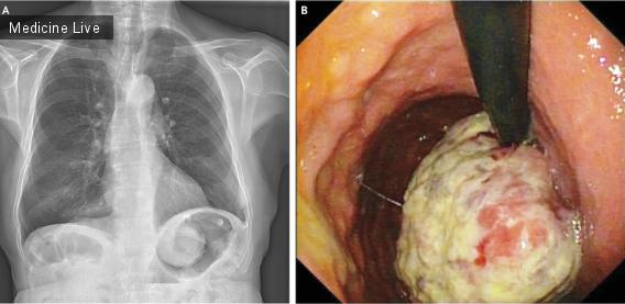 Интересный случай: рак желудка при рентгенографии грудной клетки