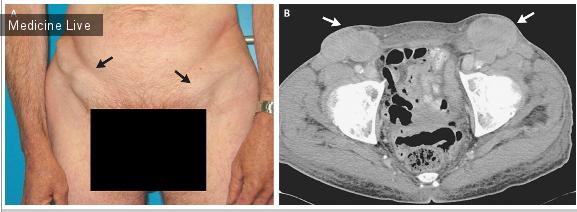 Интересный случай: Метастатическая паховая лимфаденопатия