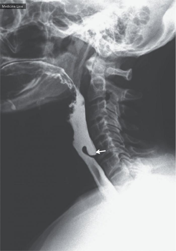 Анатомия: Дивертикул Ценкера