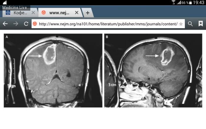 Интересный случай: Церебральная туберкулома