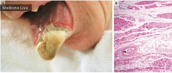 Интересный случай: Некроз языка у пациентки с эссенциальным тромбоцитозом.