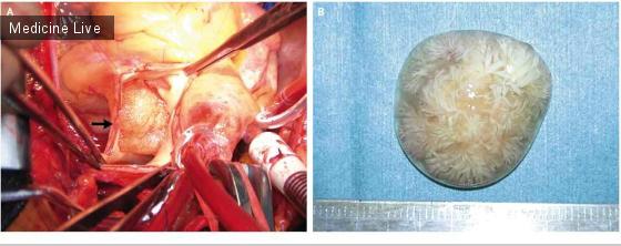 Интересный случай: Папиллярная фиброэластома легочной артерии