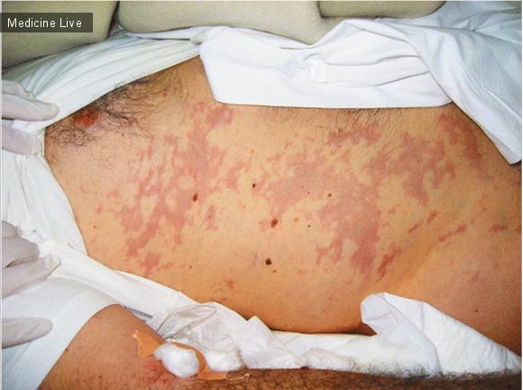 Интересный случай: «Мраморная кожа» при кессонной  болезни