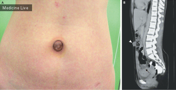 Интересный случай: Узел Виллара — Эндометриоз пупка