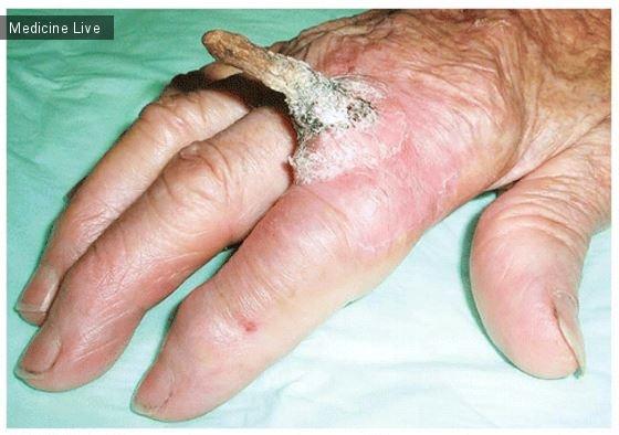 Интересный случай: Сквамозно-клеточная карцинома, манифестирующаяся как кожный рог