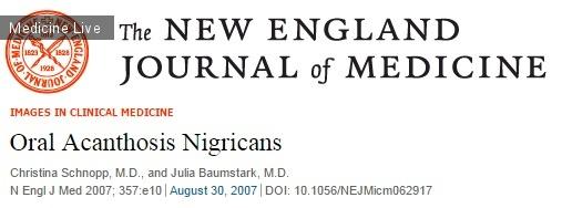 Интересный случай: Оральный черный акантоз
