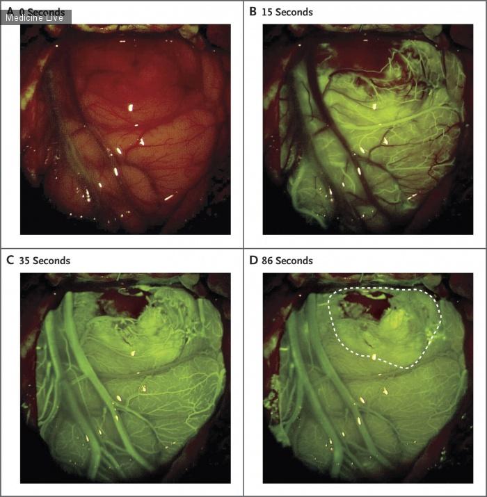 Интересный случай: Применение флюоресцеина при резекции глиобластомы