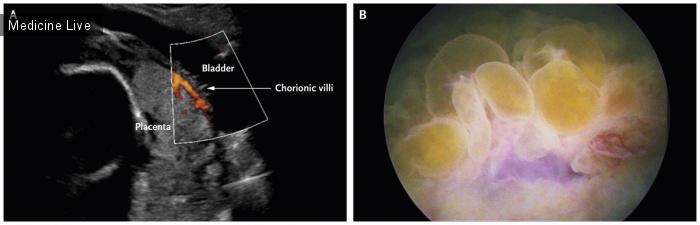Интересный случай: Прорастающая плацента с вовлечением материнского мочевого пузыря