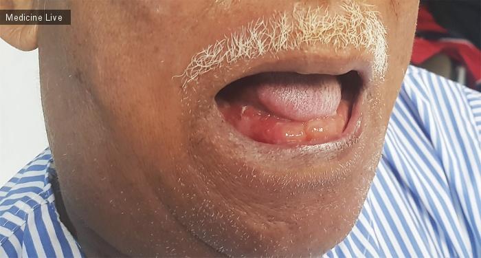 Интересный случай: Появление двойного языка при стенокардии Людвига