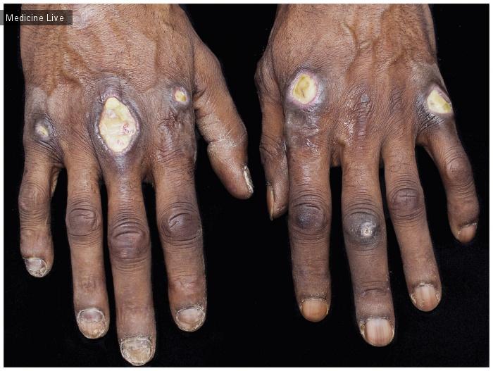 Интересный случай: Кожные язвы при дерматомиозите Anti-MDA5