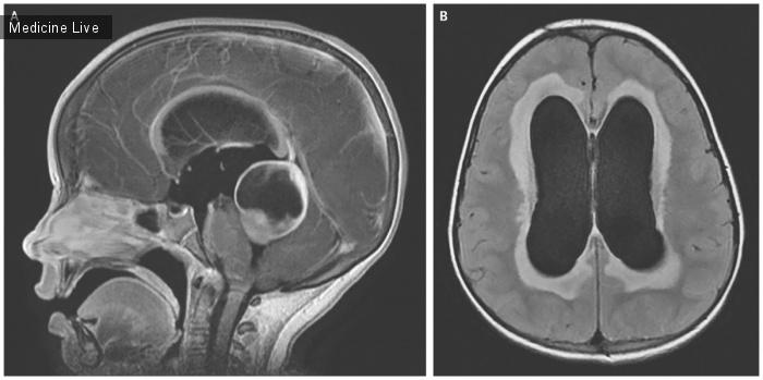 Интересный случай: Обструктивная гидроцефалия