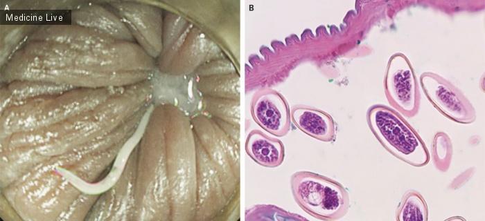 Интересный случай: Инфекция Enterobius vermicularis (Острица)