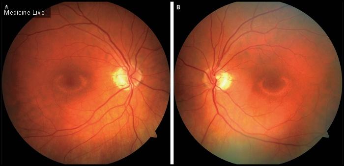 Интересный случай: Макулопатия бычьего глаза, связанная с гидроксихлорохином