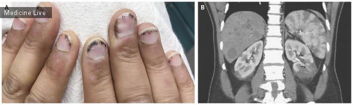 Интересный случай: Небактериальный тромботический эндокардит
