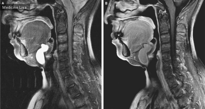 Интересный случай: Киста щитовидного протока