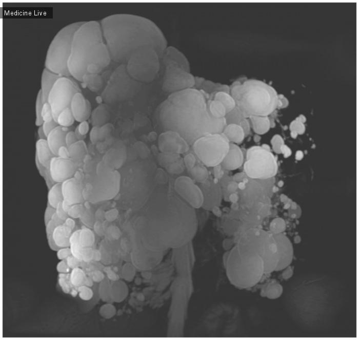 Интересный случай: Поражение печени при аутосомно-доминантной поликистозной болезни почек