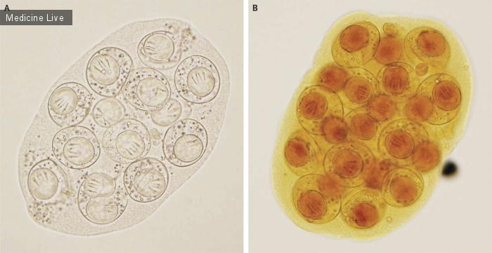 Интересный случай: Заражение ленточным червем(Dipylidium caninum)