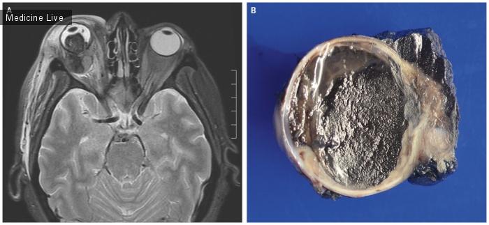 Интересный случай: Метастатическая увеальная меланома